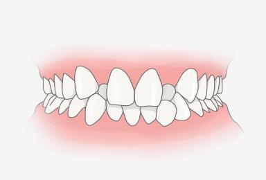 덧니 또는 불규칙한 치아